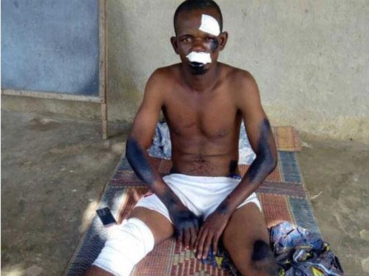 Togo : Chassées, Bastonnées, Blessées, des Victimes, toujours très affectées, racontent la sauvagerie militaire de Faure Gnassingbé
