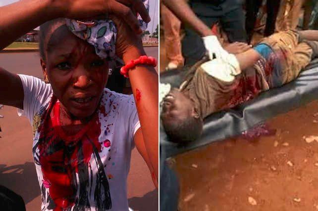 gauche, une jeune femme blessée à la tête en août 2017 et à droite, un homme blessé par balle en septembre 2017, tous deux par la soldatesque de Faure Gnassingbé lors des séries des manifestations prodémocratie qui ont secoué le pays pendant cette période | Photos : DR