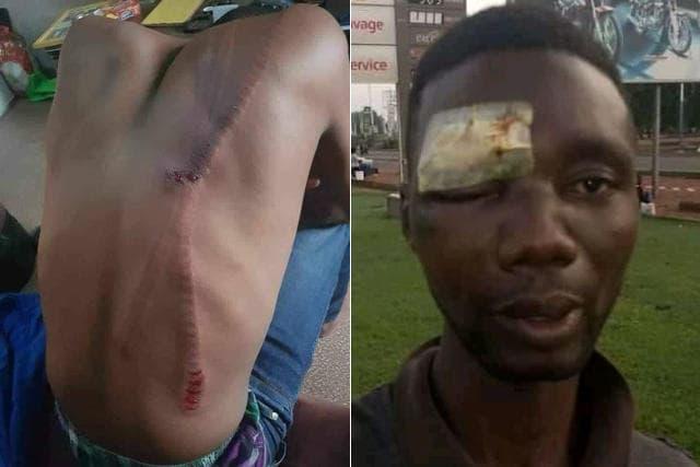 Quelques chefs-d'oeuvre de la violence gratuite des forces de sécurité et défense de Faure Gnassingbé sur les populations civiles | Photos : DR